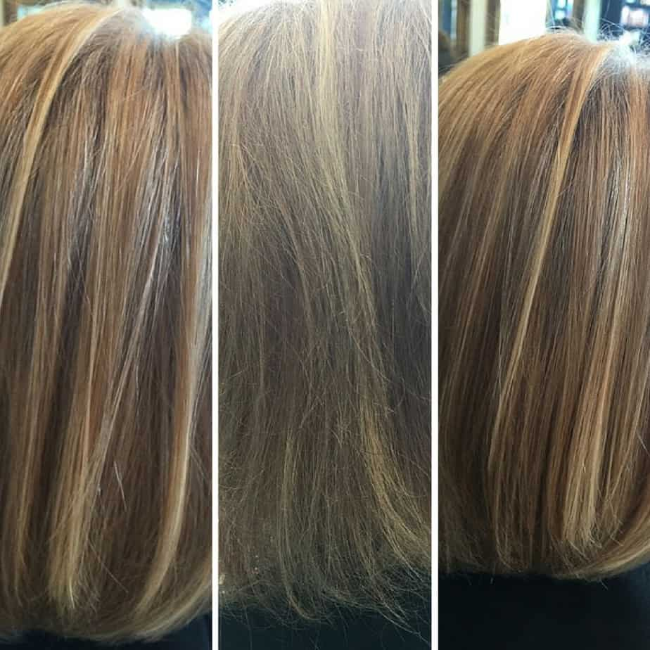 Evox hair rejuvenation therapy