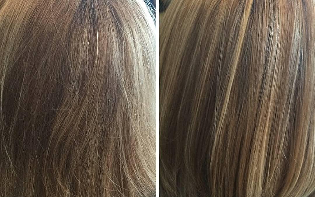 Evox Hair Rejuvenation Therapy, It's Brand New