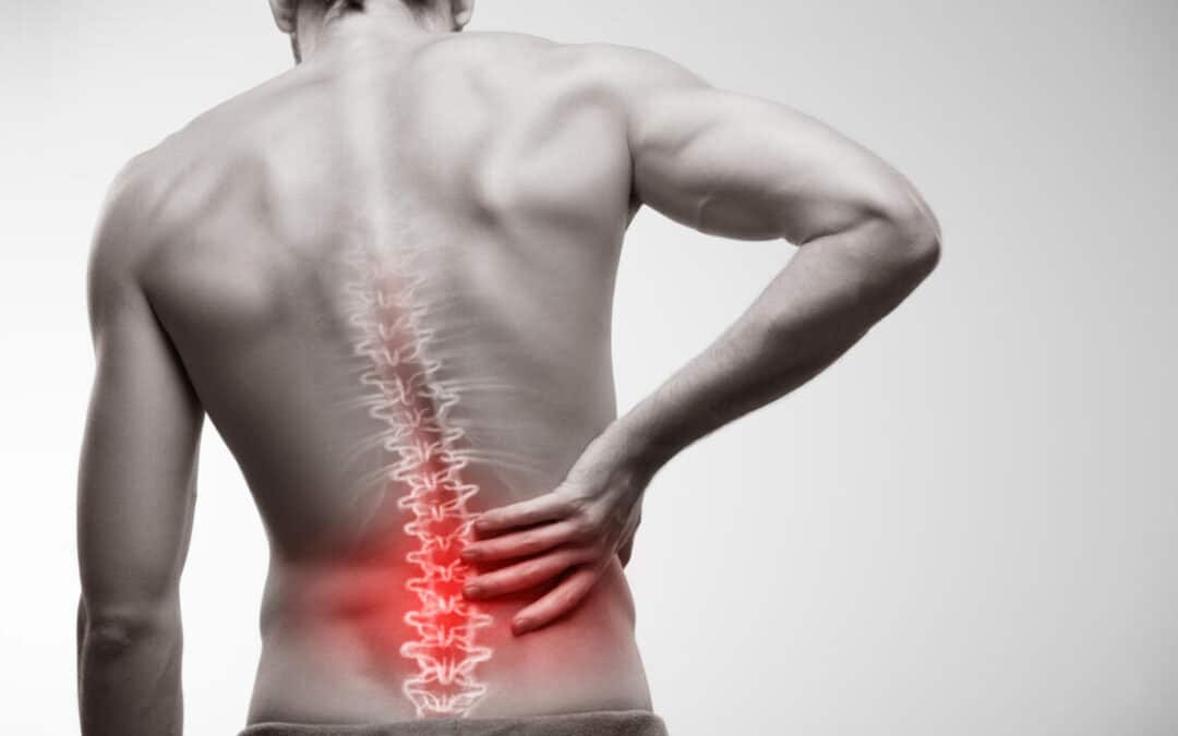 Striking the Right Nerve: How To Address Lower Back Pain